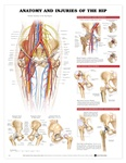Anatomy and Injuries of the Hip Anatomical Chart - Laminated
