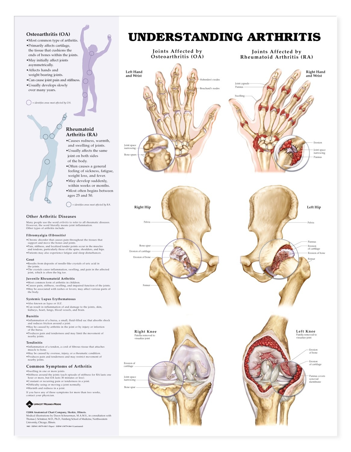 Understanding Arthritis Anatomical Chart Anatomy Models And