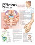 Understanding Parkinson's Disease Anatomical Chart, 2nd Edition - Laminated