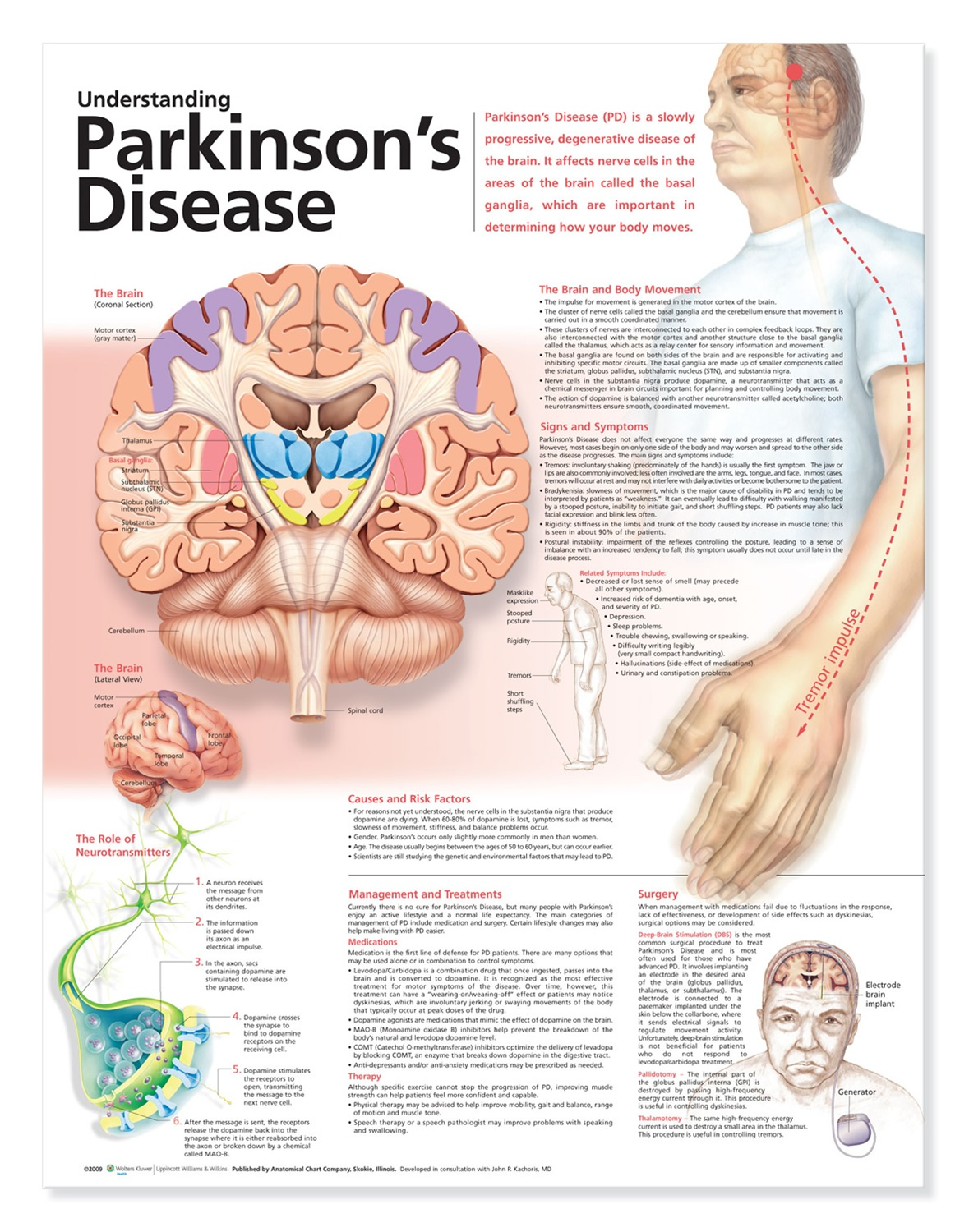 Understanding Parkinson\'s Disease Anatomical Chart, 2nd Edition ...