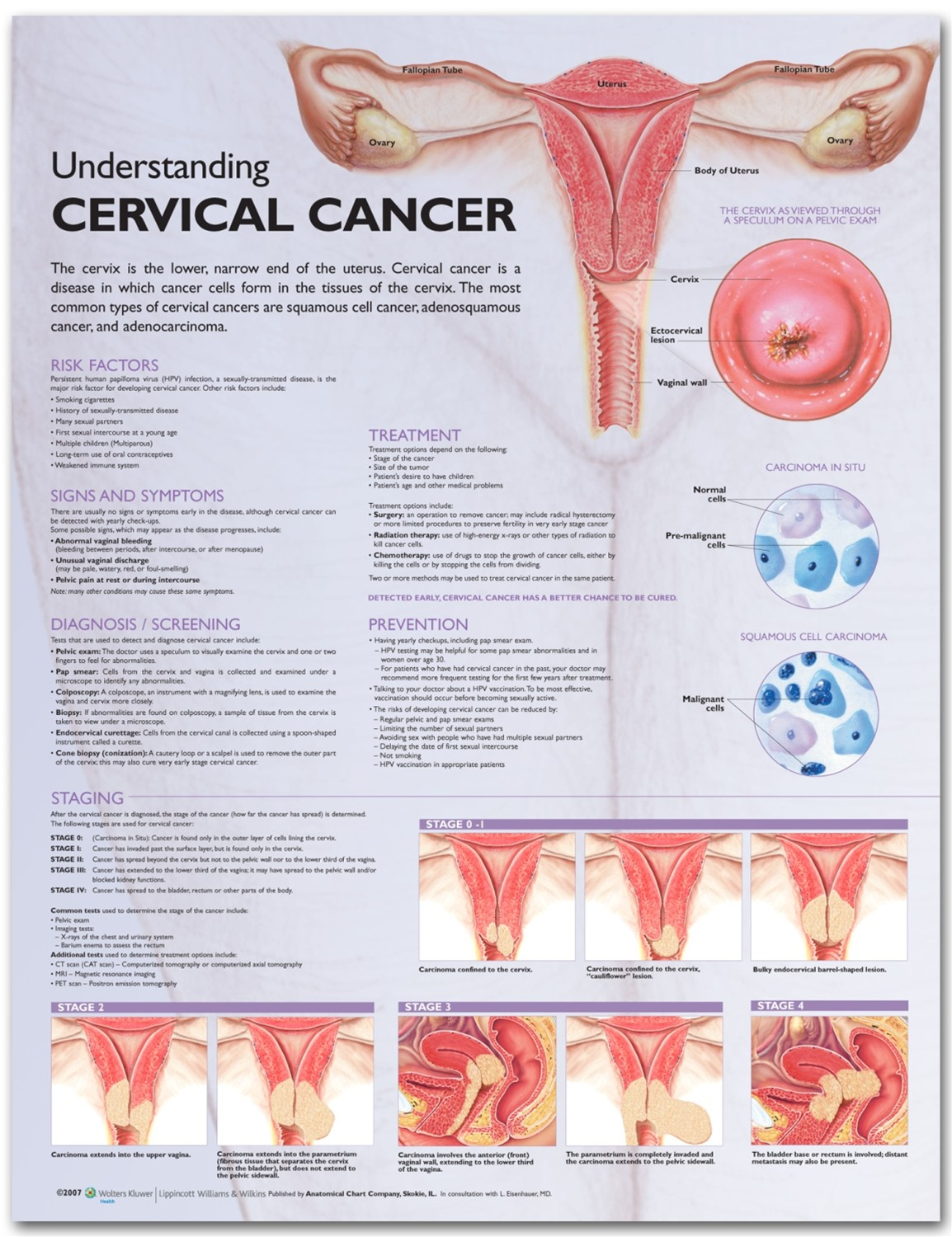 Understanding Cervical Cancer Anatomical Chart - Anatomy Models and ...