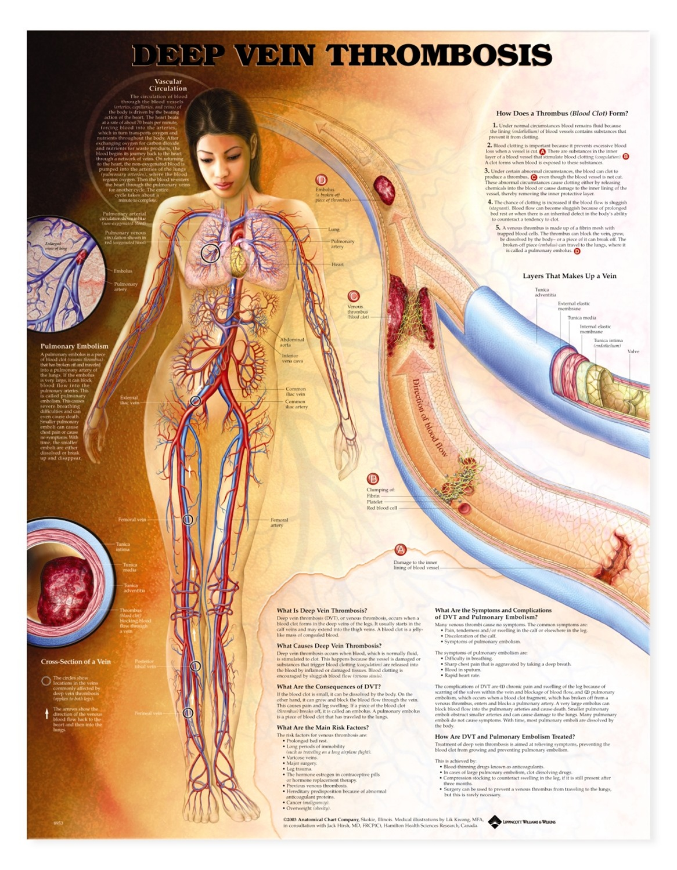 Deep Vein Thrombosis Anatomical Chart Anatomy Models And