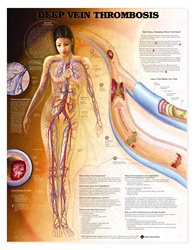 Deep Vein Thrombosis Anatomical Chart