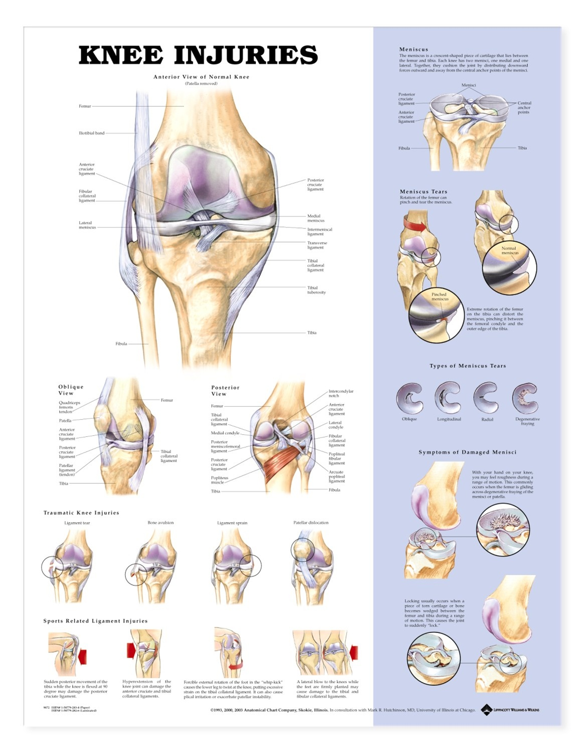 Knee Injuries Anatomical Chart - Anatomy Models and Anatomical Charts