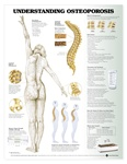 Understanding Osteoporosis Anatomical Chart