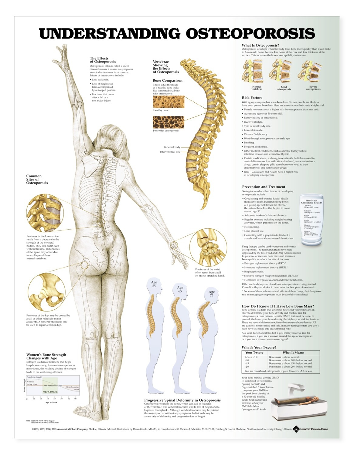 Understanding Osteoporosis Anatomical Chart - Anatomy Models and ...