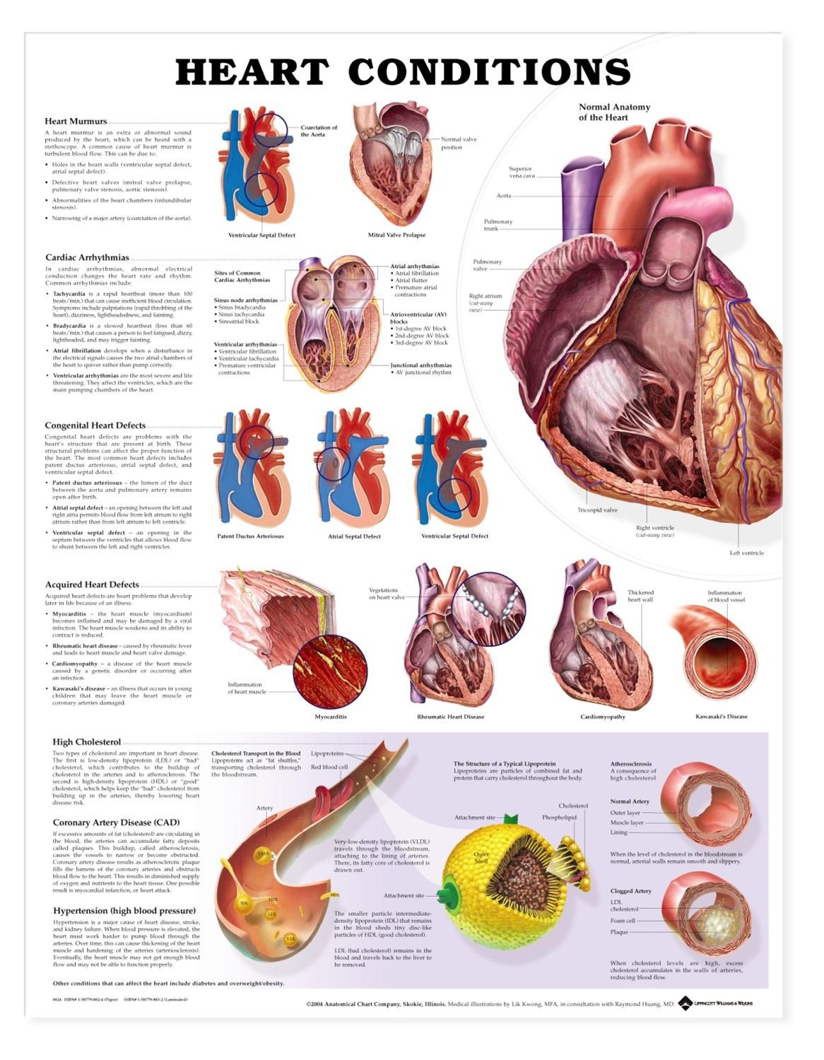 Heart Conditions Anatomical Chart - Anatomy Models and Anatomical Charts
