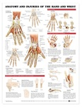 Anatomy and Injuries of the Hand and Wrist Anatomical Chart - Laminated