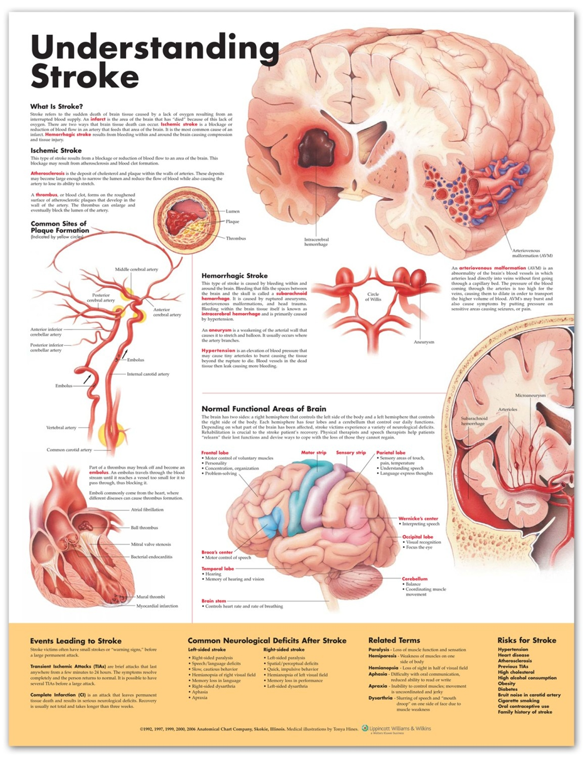 Understanding Stroke Anatomical Chart, 2nd Edition - Anatomy Models ...
