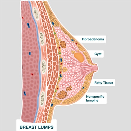 Bodypartchart Breast Lumps Labeled Anatomical Charts
