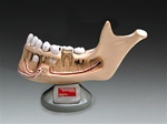 Deluxe Jaw w/Removable Teeth