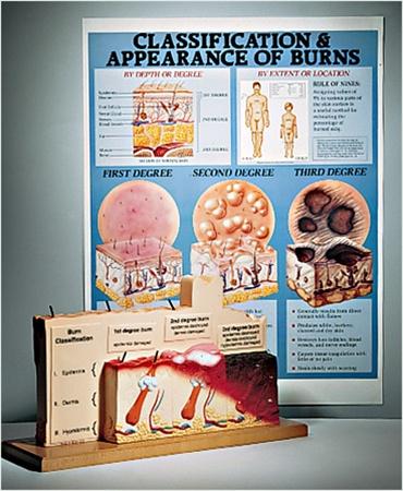 Human Skin Burn Series Anatomical Model - Anatomy Models and ...