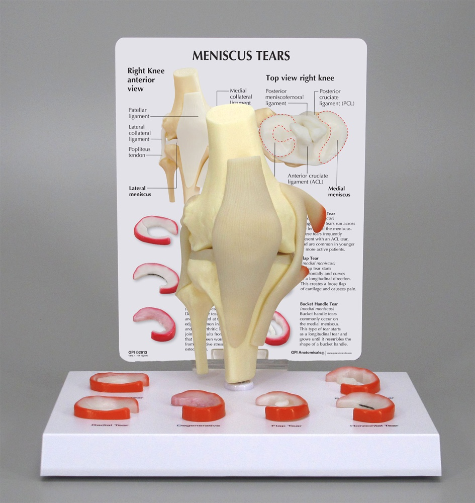 Meniscus Tears of the Knee - Anatomy Models and Anatomical Charts