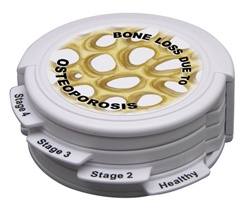 Osteoporosis 4pc Hinged Disk Set