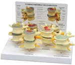 Four Stage Lumbar Vertebrae Set