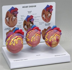 Mini Heart Set Models