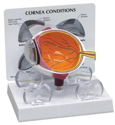 Cornea Eye Model Cross Section W Patient Education Card Anatomy