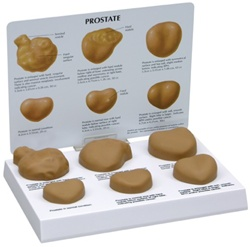 Human Male Prostate Anatomy Model with Patient Education Card