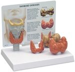 Human Thyroid Diseases Anatomy Model with Patient Education Card
