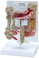 Colon Anatomy Model w/ common pathologies