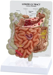 Colon and GI Tract Anatomy Model
