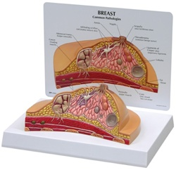 Female Breast Cross-section Model showing common pathologies
