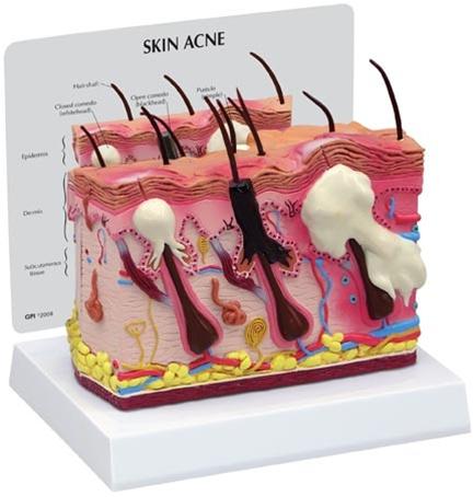 Skin Anatomy Normal/Acne Model - Skin Model