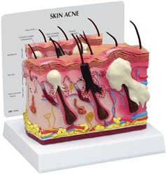 Skin Anatomy Normal/Acne Model
