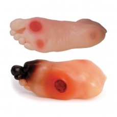 Diabetic Foot Model Set (2)