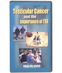 Testicular Cancer and theImportance of TSE DVD