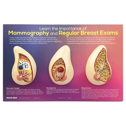 Learn the Importance of Mammography Display