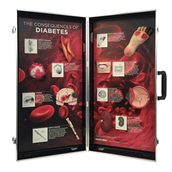 The Consequences of Diabetes 3DDisplay