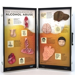 The Consequences of Alcohol Abuse 3D Display