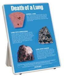 Death of a Lung Easel Display