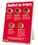 Death of an Artery EaselDisplay