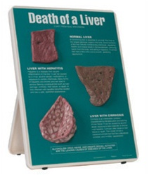 Death of a Liver Easel Display