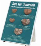 See For Yourself: Prostate Exams Easel Display