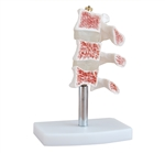 Cutaway Osteoporosis Anatomical Model SAI-14OST