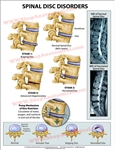 Spinal Disc Disorder Wall Chart