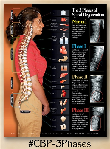 Celebration Poster Gift Offer <br><strong>3 Phase of Spinal Degeneration 22 x 28 (non-laminated)</strong><BR>For Licensed DC Only - One Per Doctor/Clinic