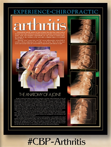 Arthritis: The Anatomy of a Joint 22 x 28 (non-laminated)