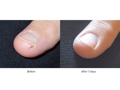 how to care for cracked skin on fingers