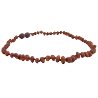 The Amber Monkey Baroque Baltic Amber 10-11 inch Necklace - Raw Chestnut POP