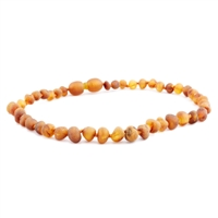 The Amber Monkey Baroque Baltic Amber 10-11 inch Necklace - Raw Cognac POP