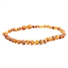 The Amber Monkey Baroque Baltic Amber 17-18 inch Necklace - Raw Cognac
