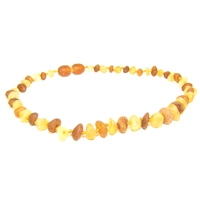 The Amber Monkey Baroque Baltic Amber 10-11 inch Necklace - Raw Lemon/Raw Cognac