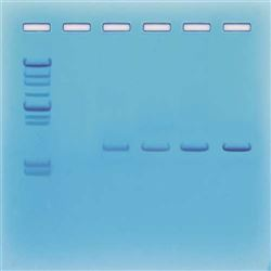 DNA Fingerprinting - Using Restriction Enzyme