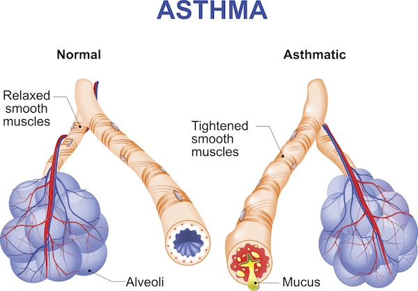 best air purifiers for asthma sufferers | oransi  asthma diagram