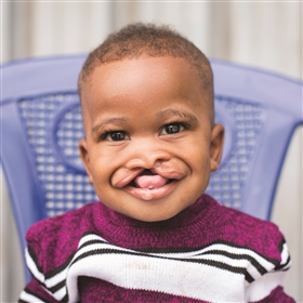 Share of Cleft Lip or Cleft Palate Surgery