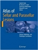 Atlas of Sellar and Parasellar Lesions; Clinical, Radiologic, and Pathologic Correlations